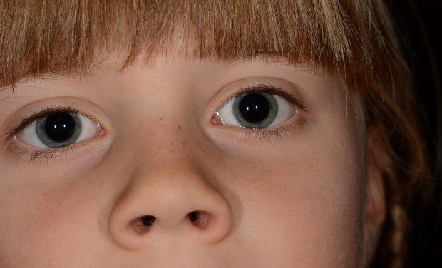 naso chiuso nei bambini
