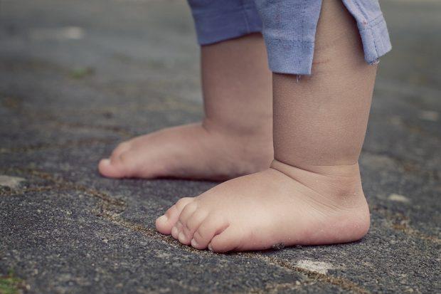 piedi piatti nei bambini